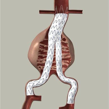 Aussackung der Schlagader, Bauchaortenaneurysma - Dr. med ...